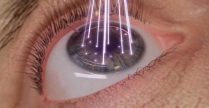 New Lasik Procedure Delivers
